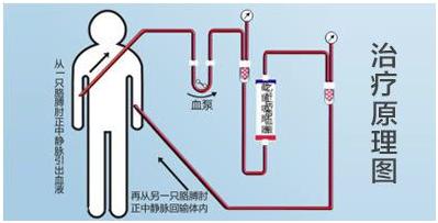 肝病免疫吸附疗法